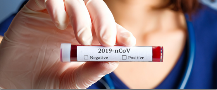 Image of COVID19 Labeled testing vial